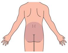 腰痛の範囲